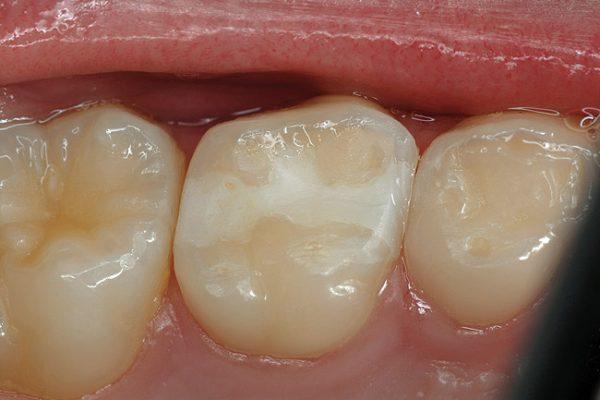 molarsprimary