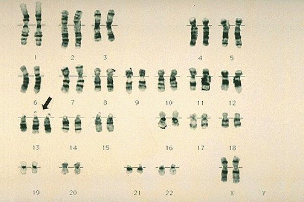 nasledstveni-bolesti-pri-choveka-3-_html_m6d66f137