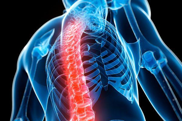 osteoporosis-637x400
