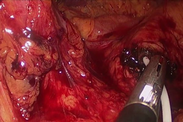pancreaticlaparoscopicresection