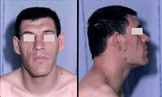 Acromegaly_facial_features