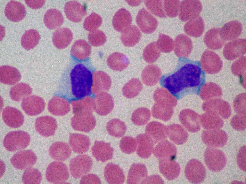 infectuous mononusleosis